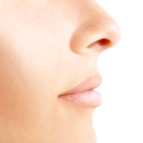 Як швидко вилікувати зламаний ніс