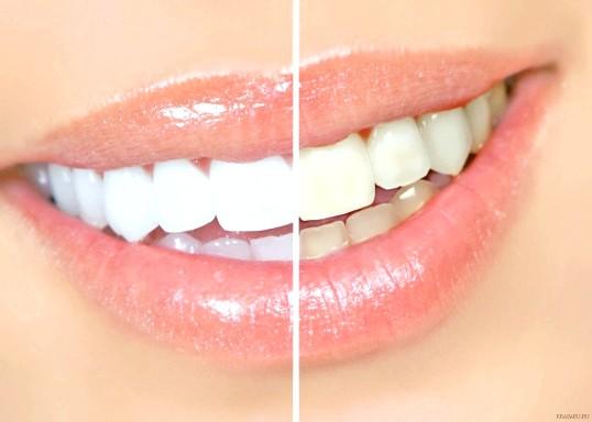 Що робити, щоб зуби залишалися білими