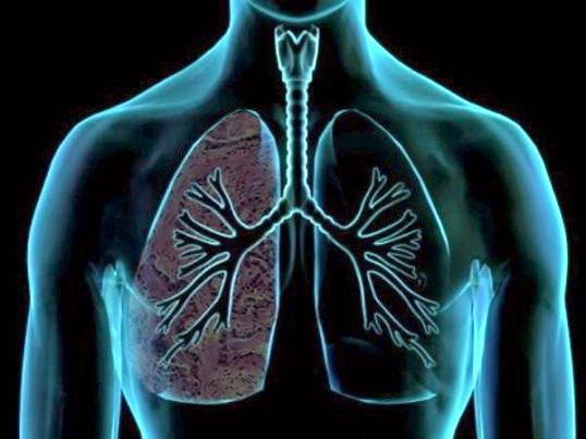 Профілактика і лікування емфіземи легенів