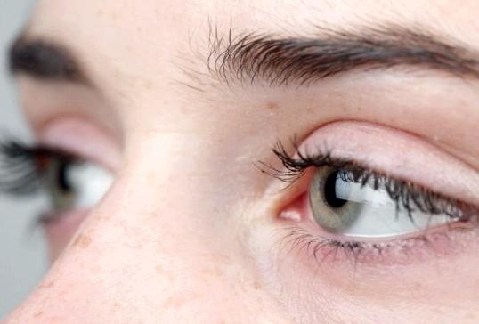 Що робити, якщо червоні очі