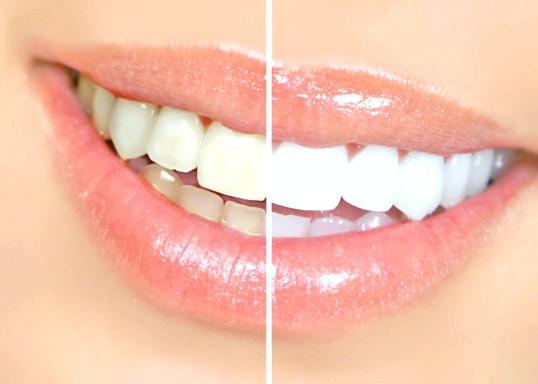 Що таке дісколоріт зубів