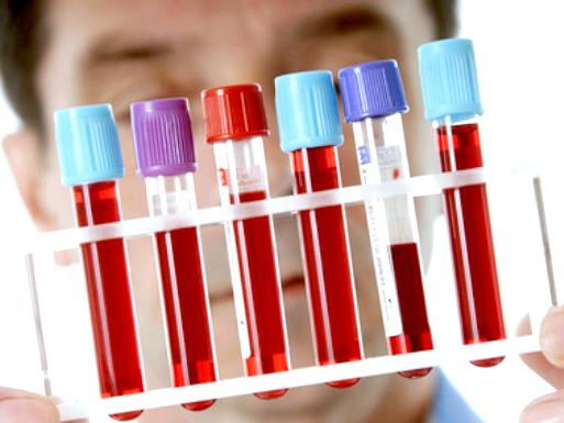 Цитомегаловірусна інфекція: симптоми і лікування